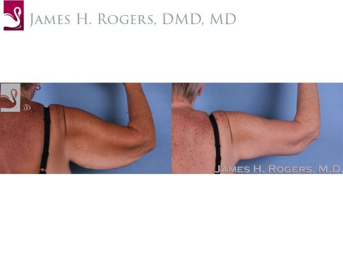 Arm Lift Case #60263 (Image 2)