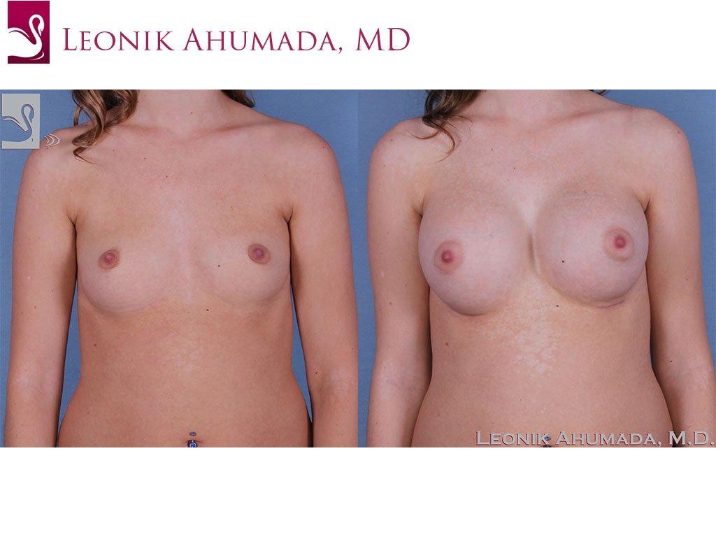 Breast Augmentation Case #60985 (Image 1)