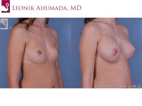Breast Augmentation Case #60985 (Image 2)