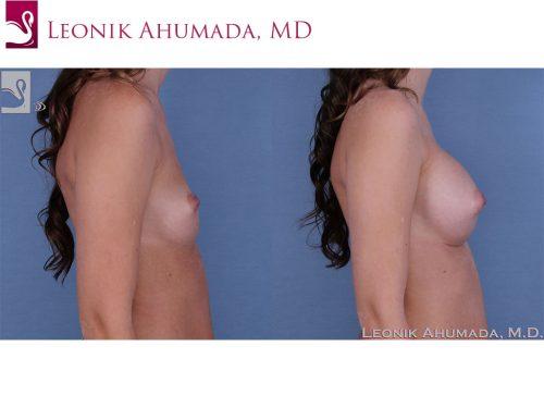 Breast Augmentation Case #60985 (Image 3)