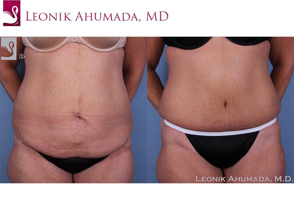 Abdominoplasty (Tummy Tuck) Case #57505 (Image 1)