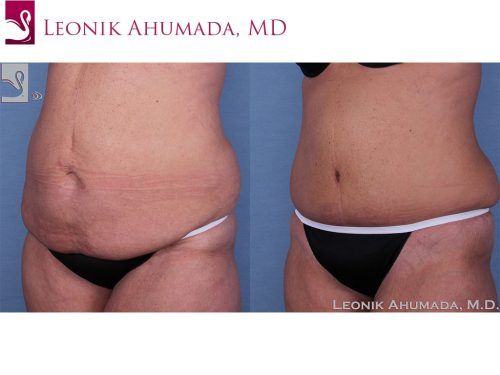 Abdominoplasty (Tummy Tuck) Case #57505 (Image 2)