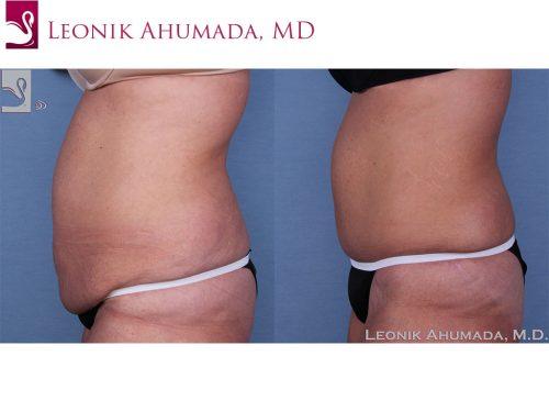 Abdominoplasty (Tummy Tuck) Case #57505 (Image 3)