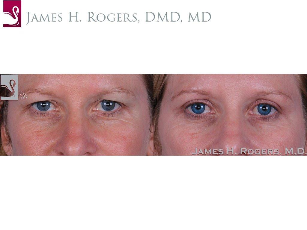 Eyelid Surgery Case #51001 (Image 1)