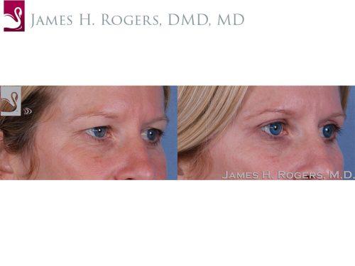 Eyelid Surgery Case #51001 (Image 2)