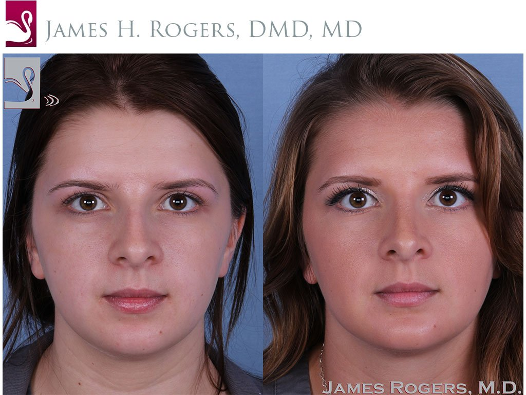 Facial Implants Case #55949 (Image 1)