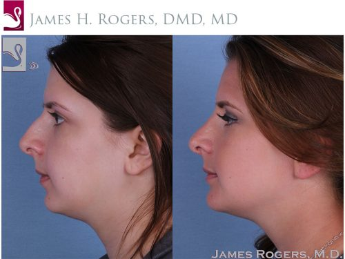 Facial Implants Case #55949 (Image 3)