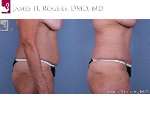 Abdominoplasty (Tummy Tuck) Case #48358 (Image 3)