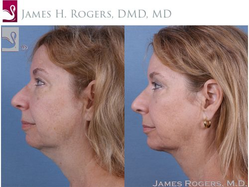 Facial Implants Case #60340 (Image 3)