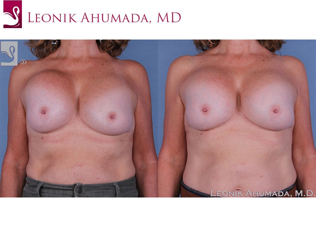 Breast Revisions Case #60818 (Image 1)