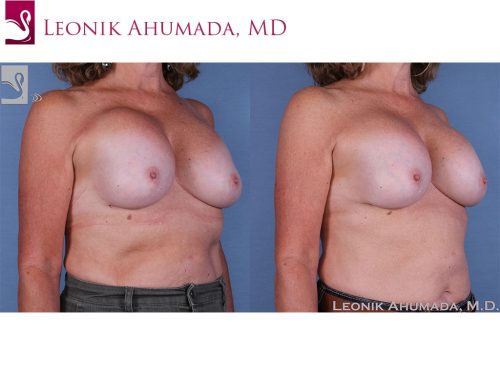 Breast Revisions Case #60818 (Image 2)