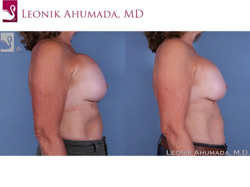 Breast Revisions Case #60818 (Image 3)