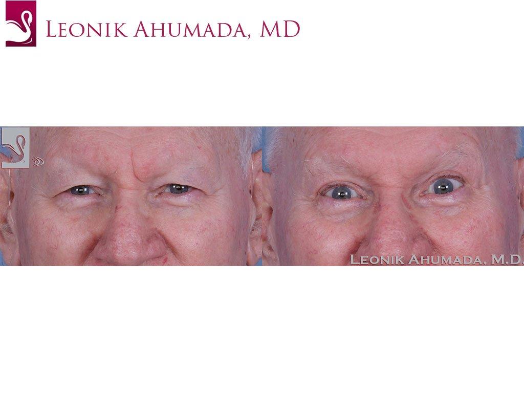 Eyelid Surgery Case #62661 (Image 1)