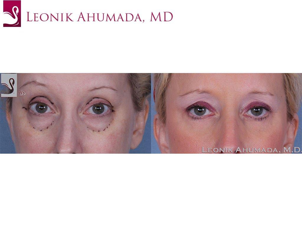 Eyelid Surgery Case #40054 (Image 1)