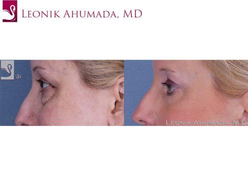 Eyelid Surgery Case #40054 (Image 3)