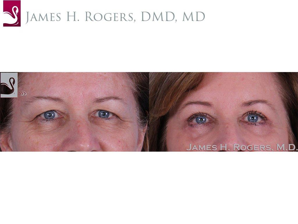 Eyelid Surgery Case #33375 (Image 1)