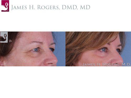 Eyelid Surgery Case #33375 (Image 2)