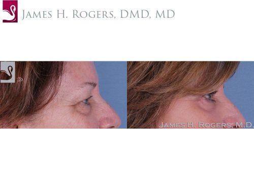 Eyelid Surgery Case #33375 (Image 3)