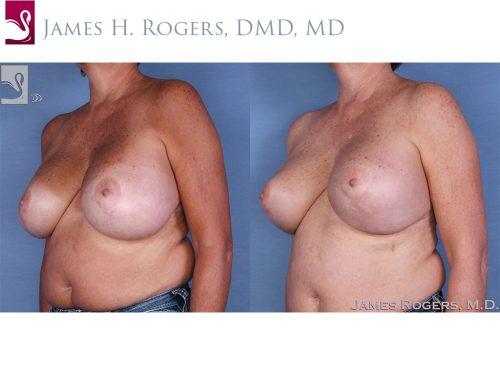 Female Breast Reduction Case #13784 (Image 2)
