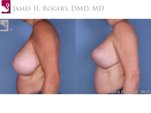 Female Breast Reduction Case #13784 (Image 3)