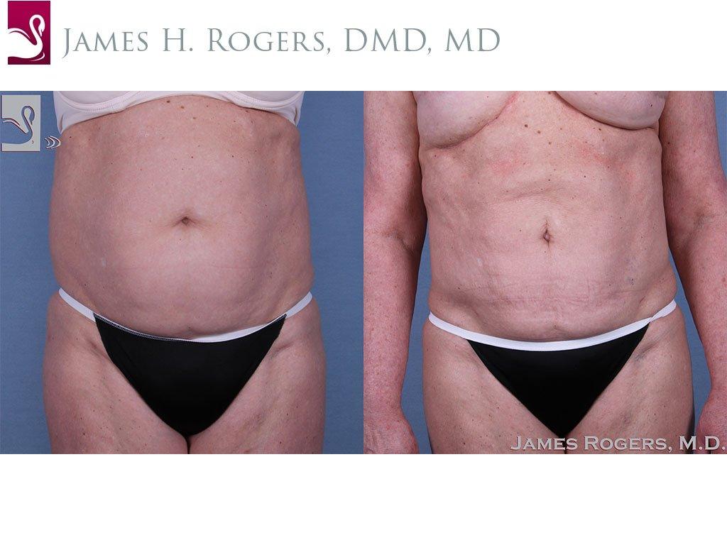 Liposuction Case #24966 (Image 1)