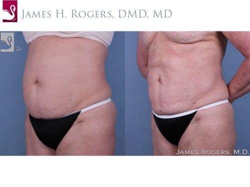 Liposuction Case #24966 (Image 2)