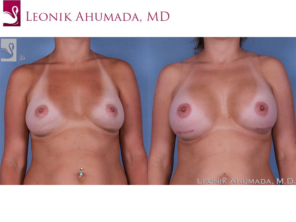 Breast Revisions Case #37932 (Image 1)