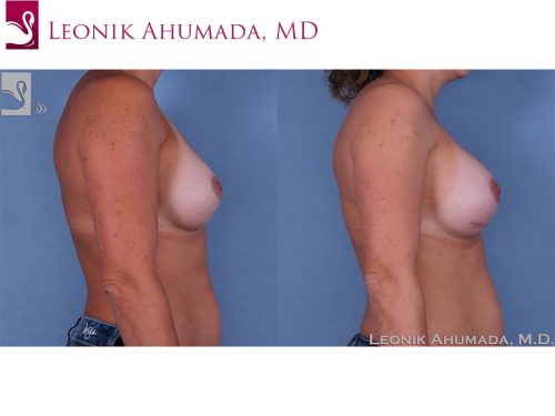 Breast Revisions Case #37932 (Image 3)