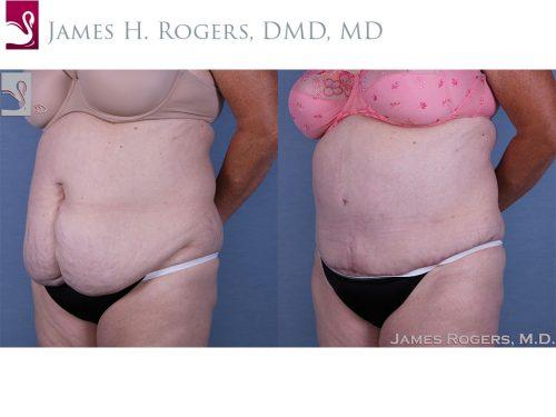 Abdominoplasty (Tummy Tuck) Case #53893 (Image 2)
