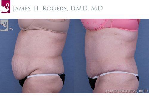 Abdominoplasty (Tummy Tuck) Case #53893 (Image 3)