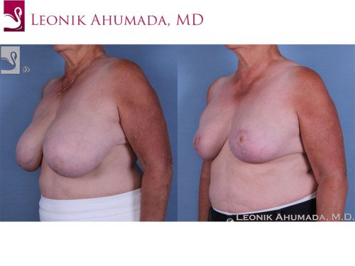 Female Breast Reduction Case #57285 (Image 2)