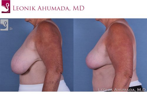 Female Breast Reduction Case #57285 (Image 3)