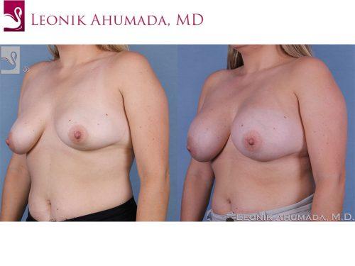 Breast Augmentation Case #58317 (Image 2)
