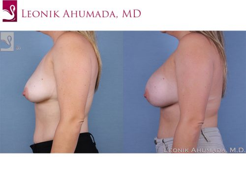 Breast Augmentation Case #58317 (Image 3)