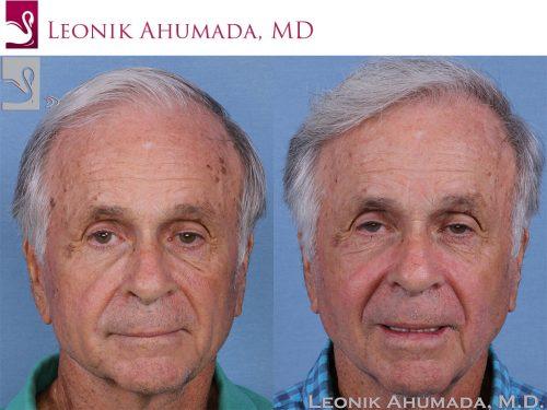 Hair Transplant Case #58402 (Image 2)