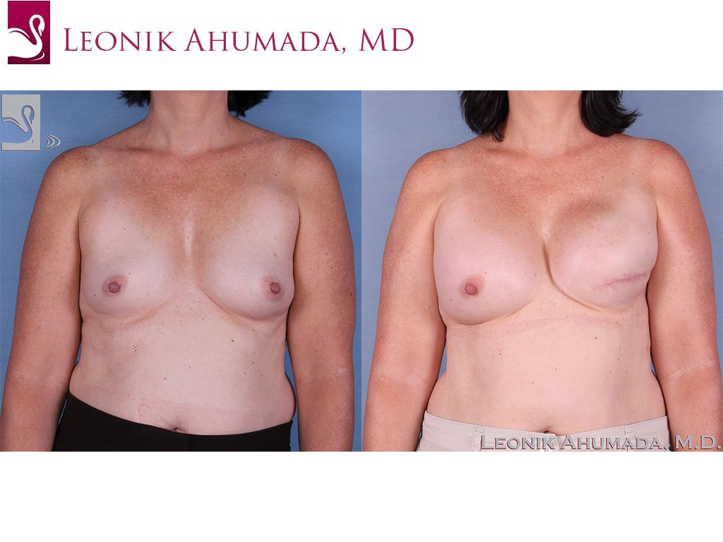 Breast Reconstruction Case #58914 (Image 1)