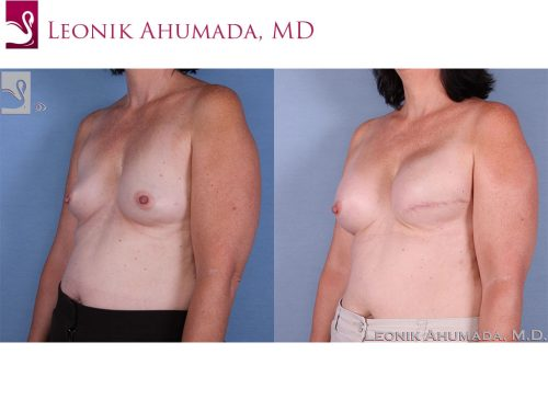 Breast Reconstruction Case #58914 (Image 2)