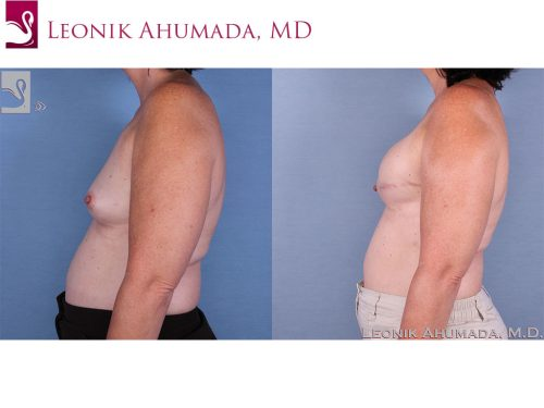 Breast Reconstruction Case #58914 (Image 3)