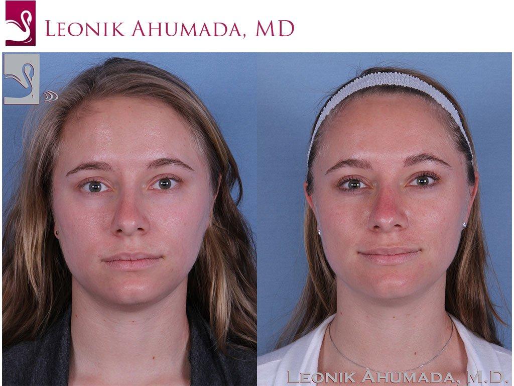 Rhinoplasty Case #59802 (Image 1)