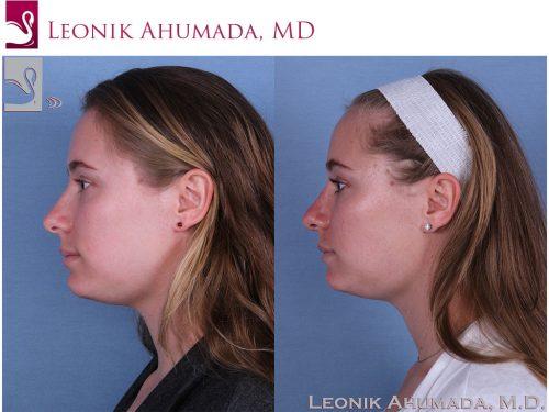 Rhinoplasty Case #59802 (Image 3)