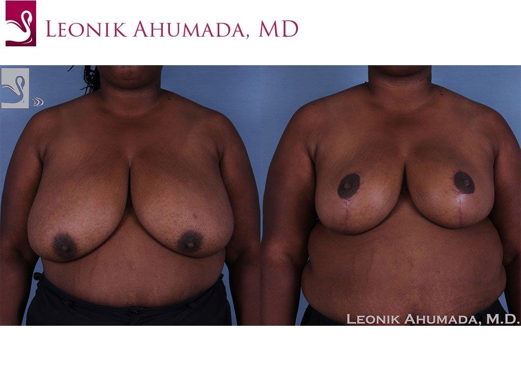 Female Breast Reduction Case #60754 (Image 1)