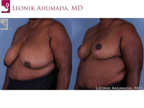 Female Breast Reduction Case #60754 (Image 2)