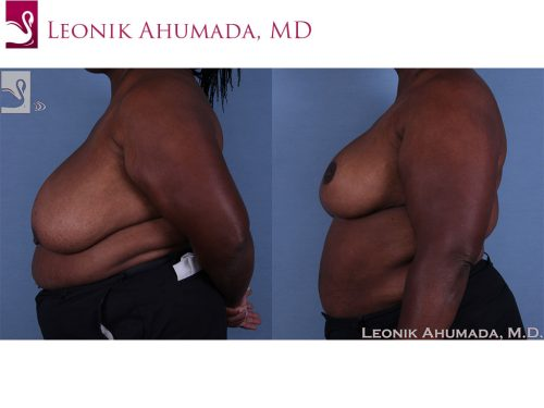 Female Breast Reduction Case #60754 (Image 3)