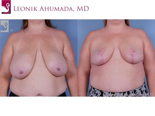 Female Breast Reduction Case #61478 (Image 1)