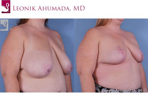 Female Breast Reduction Case #61478 (Image 2)