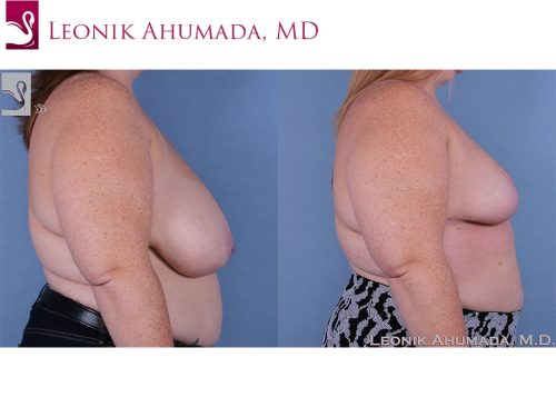 Female Breast Reduction Case #61478 (Image 3)