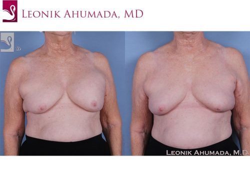 Breast Revisions Case #62052 (Image 1)