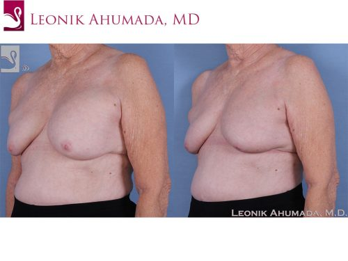 Breast Revisions Case #62052 (Image 2)