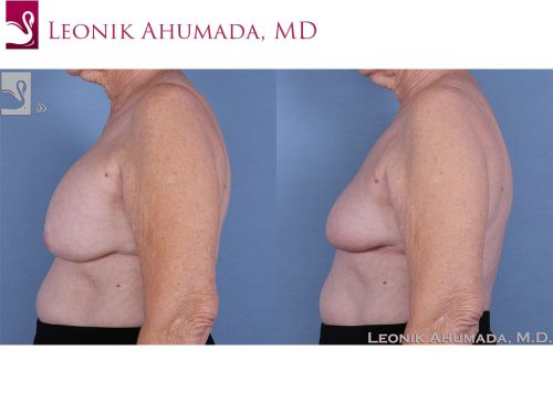 Breast Revisions Case #62052 (Image 3)