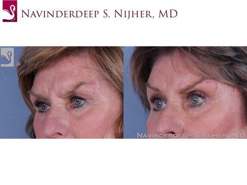Eyelid Surgery Case #62120 (Image 2)